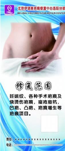 疤痕修复展架